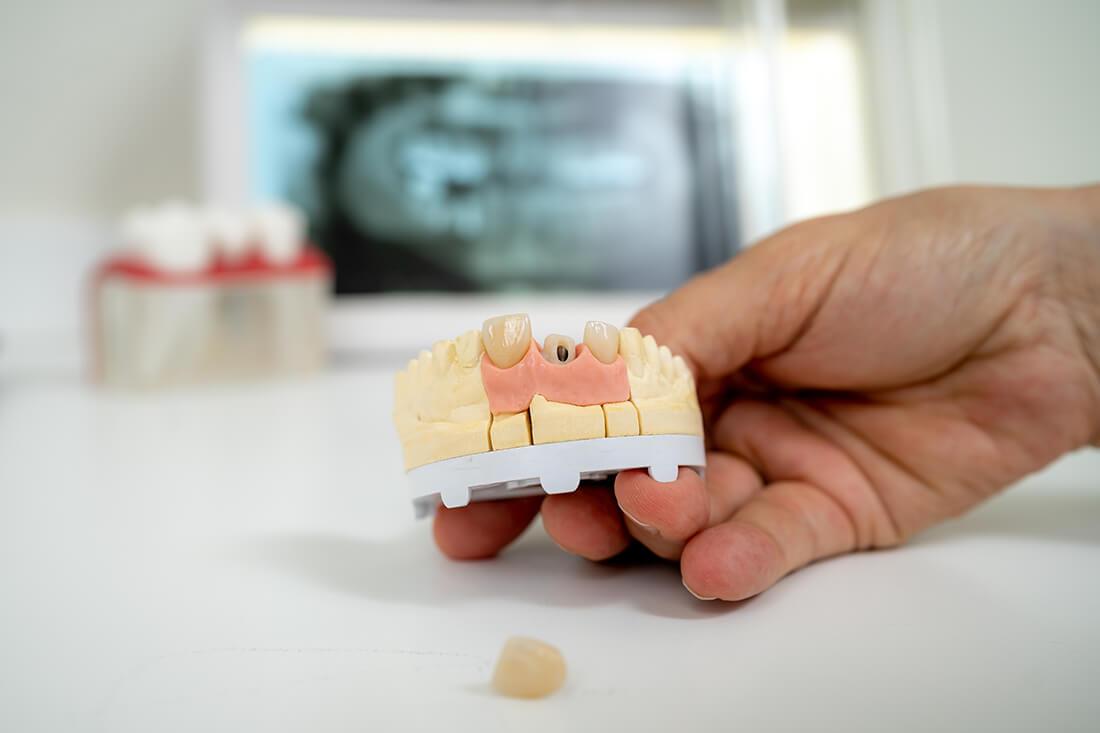 Zahnärztinnen Duisburg-Nord - Kuchenbecker-Bohnen, Mai Dinh - Implantologie