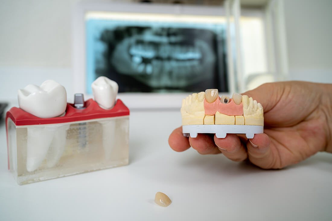Zahnärztinnen Duisburg-Nord - Kuchenbecker-Bohnen, Mai Dinh - Leistungen - Oralchirurgie / Implantologie